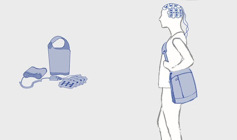 wearable device for treating gioblastoma